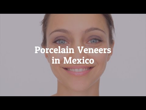 Porcelain Veneers in Mexico- Regain your Infectious Smile