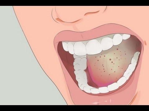Fructosa con diabetes mellitus insulinodependiente