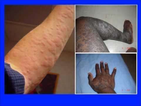 Comme traiter la peau à atopitcheskom la dermatite