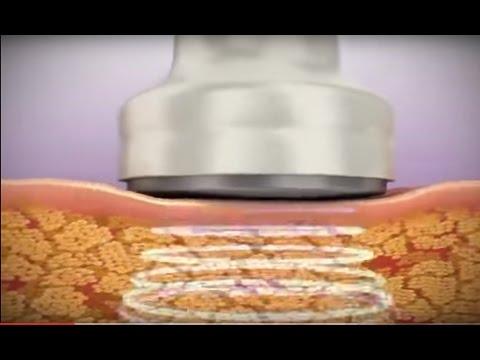 Pierdere în greutate celulită mai rău