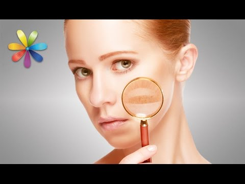 Вывести пигментные пятна на лице косметология