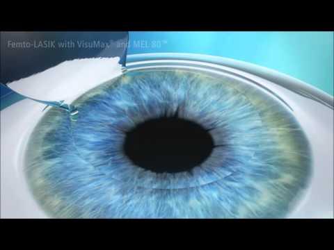 Exerciții pentru miopie pentru ochi