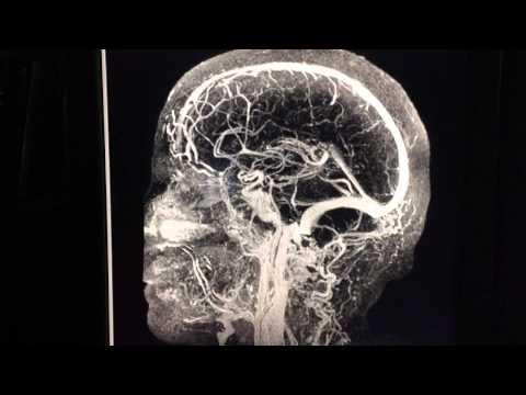 Angiogram Of The Head - Time Resolved MRI