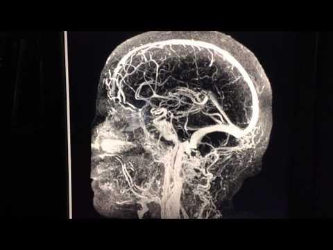 Angiogram naczyń głowy - RM z kontrastem