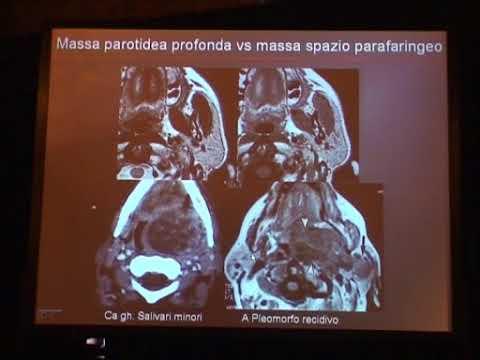 Alimentare in esposizione radiologica della prostata
