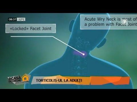 Tratamentul cartilajelor