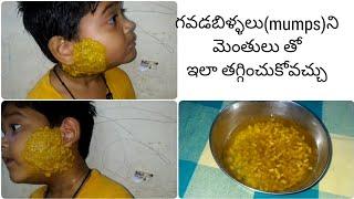 Diy ayurvedic home remedy for mumps||గవడబిళ్ళలును తగ్గించే ఇంటి చిట్కా..