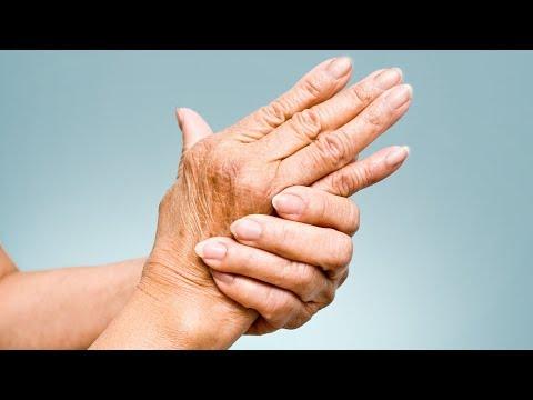 Cum se tratează artroza scapulară
