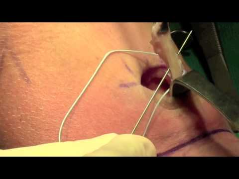 Biceps Tear: Surgical Repair