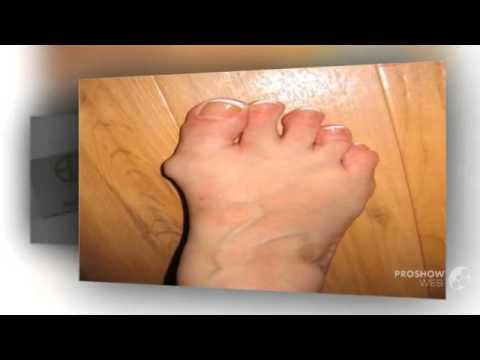 На втором пальце ноги появилась шишка