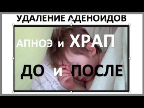 Ребенок 3 года спит   До и После удаления аденоидов   Апноэ сна Храп