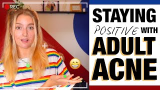 MY 15 TIPS ON HOW TO STAY POSITIVE WITH ADULT ACNE!