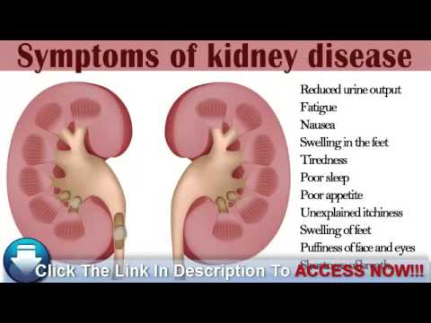 Video Watching Out For Early Symptoms of Kidney Disease in Diabetics