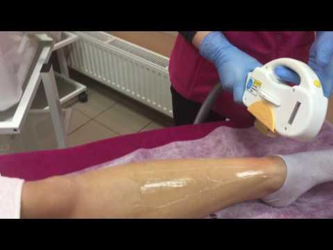 Koślawe zniekształcenie stawu kolanowego