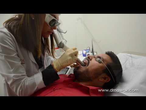 NightLase Snoring Laser Treatment Nowak Aesthetics Testimonial Epic Snoring