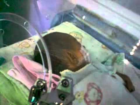 6 Penyebab Bayi Lahir Dengan Berat Rendah