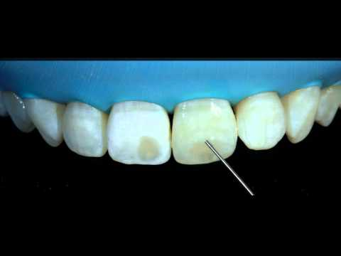 Removal of white spots on teeth with DMG ICON