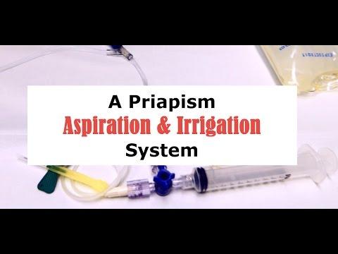 Priapism: leczenie