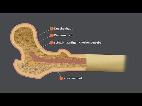 Welche für Sie schejnyj die Osteochondrose