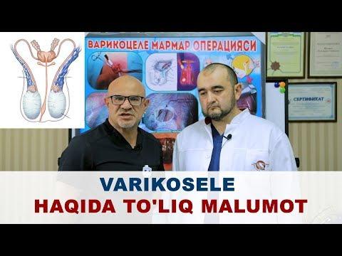 Limphioza cu veari varicose recenzii