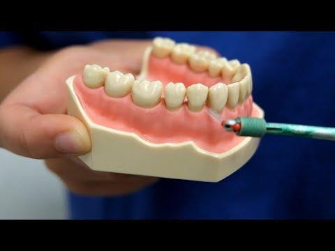 5 Tipps für die richtige Zahnpflege