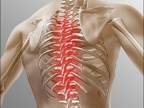 Болят мышцы у шеи