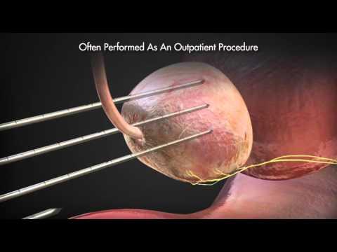 Was sind die Geräte für die Behandlung von Prostatitis