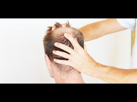 Indian Head Massage Course in london - YouTube