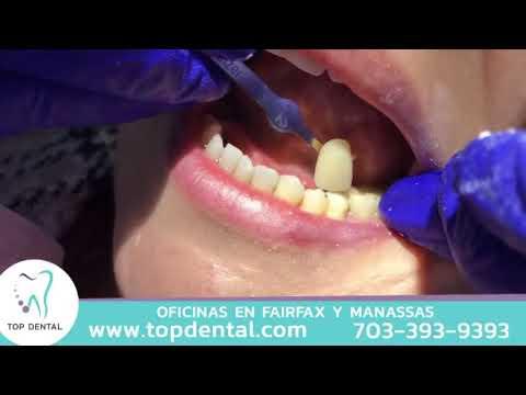 ¿Cómo se coloca una corona dental? | Top Dental