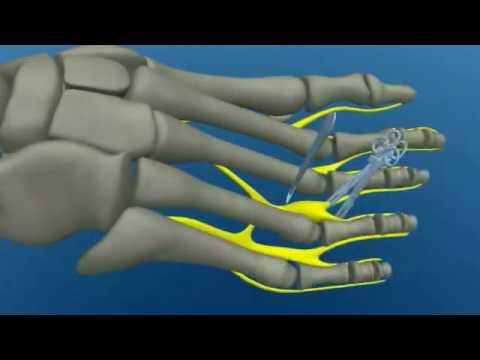 Kéz a vállízület fáj