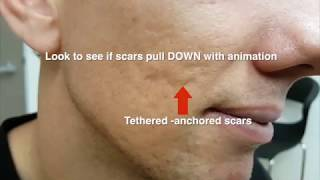 ACNE SCARS - subcision