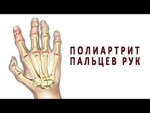 Лекарства для лечения суставов позвоночника