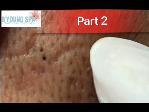 PART 2...Video for those who want to see big blackheads .Dành cho ai ghiền xem mụn đầu đen