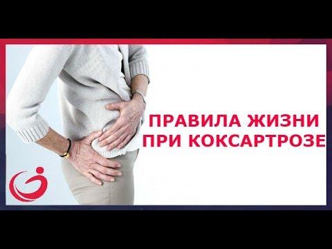Правила жизни при коксартрозе