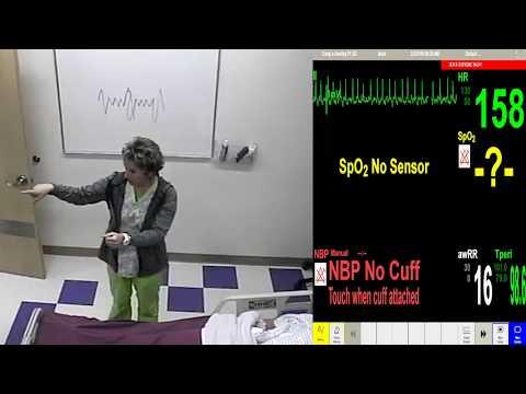 EKG Lesson