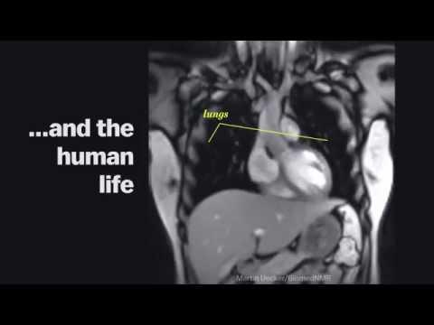 Зачатие при хроническом простатите