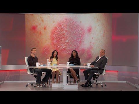 La dermatite di atopic chi si è ripreso