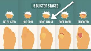 How To Treat A Blister Correctly (First, Look At Your Blister Roof)