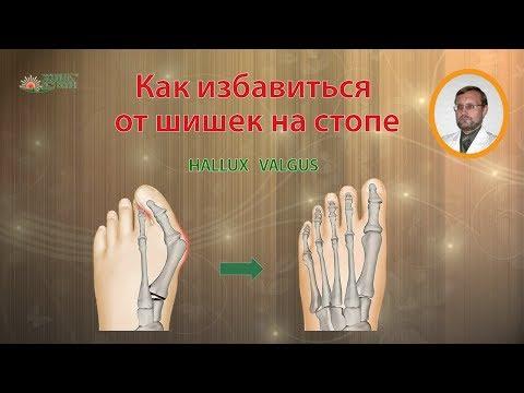 Szyszki na palcach nóg