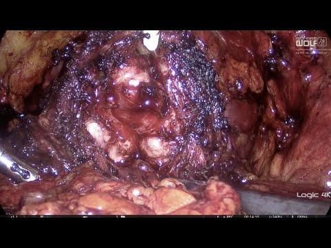 Miért nem kezelik a prosztatagyulladást