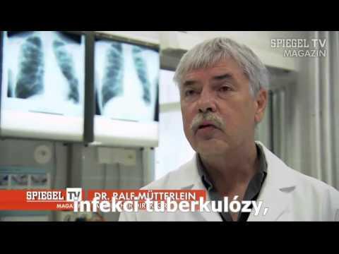 Izrael rakovina prostaty