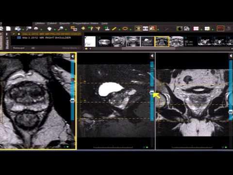 Zdravljenje metastatskega raka prostate