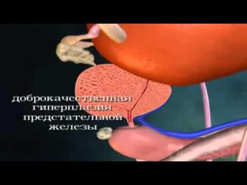 Предстательной железой простатиту
