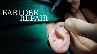 Ear Piercing Gauges | Earlobe Repair | Barrett Plastic Surgery | Beverly Hills