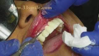 Dental Crowns and Bridges Procedure at Cosmetic Dental Associates in San Antonio, TX