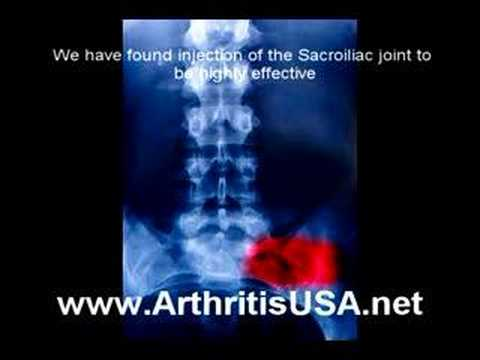 Back pain as discussed by Doctor Alimorad Farshchian