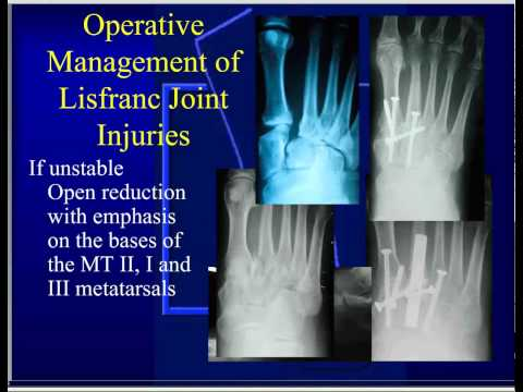 Lisfranc Injury (Tarsometatarsal fracture-dislocation) - Foot ...