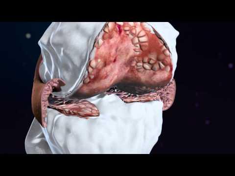 Dolor lumbar y la parte inferior del abdomen en el aborto de nacimiento