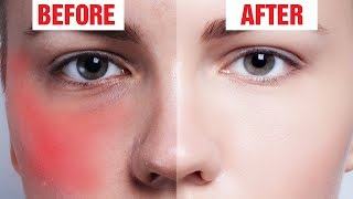 7 Natural Ways to Get Rid Of Redness on Face
