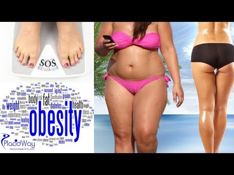 Is Mexico the right place to do your obesity surgery?